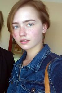 Ann,20-2